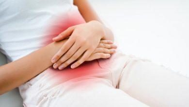 صورة اضطرابات الدورة الشهرية