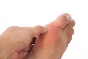الخطوات التي يجب اتباعها لعدم إصابة الشخص بالنقرس