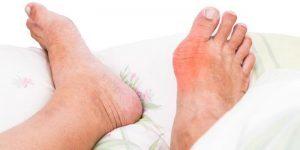 العوامل التي تسبب اعراض النقرس