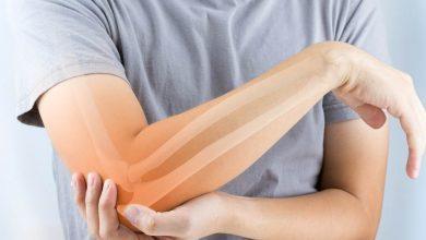 صورة أعراض نقص الكالسيوم في الجسم