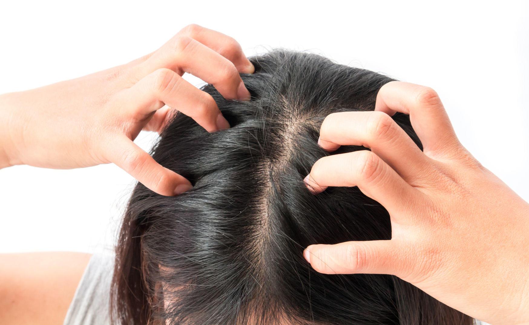 قشرة الشعر