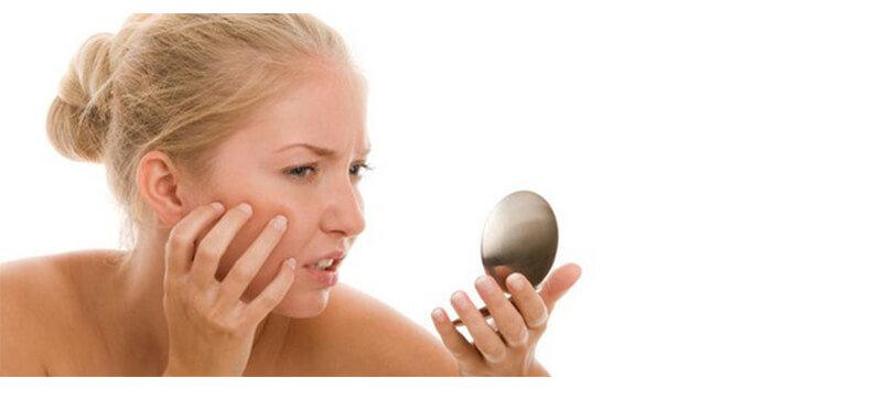 علاج حب الشباب بمعجون الأسنان