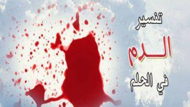 صورة الدم في المنام