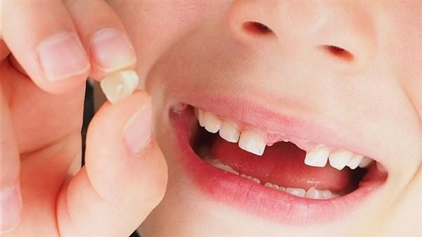 تفسير حلم وقوع الاسنان عند ابن شاهين