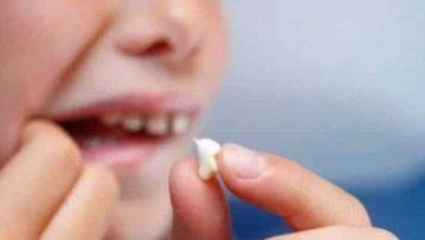 صورة تفسير حلم وقوع الاسنان