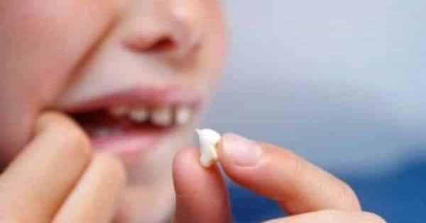 سقوط الاسنان في المنام