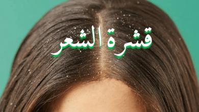 صورة طريقة علاج قشرة الشعر