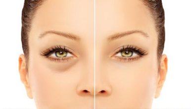 صورة 10 أسباب الانتفاخ والهالات السوداء تحت العين وكيفية علاجه؟